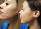 Prej / Potem: Kako učinkovito prekriti mozolje z ličili? Sandra svetuje in prikaže