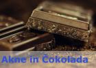 Ne, Aken ne povzročata Čokolada in Sladkarije